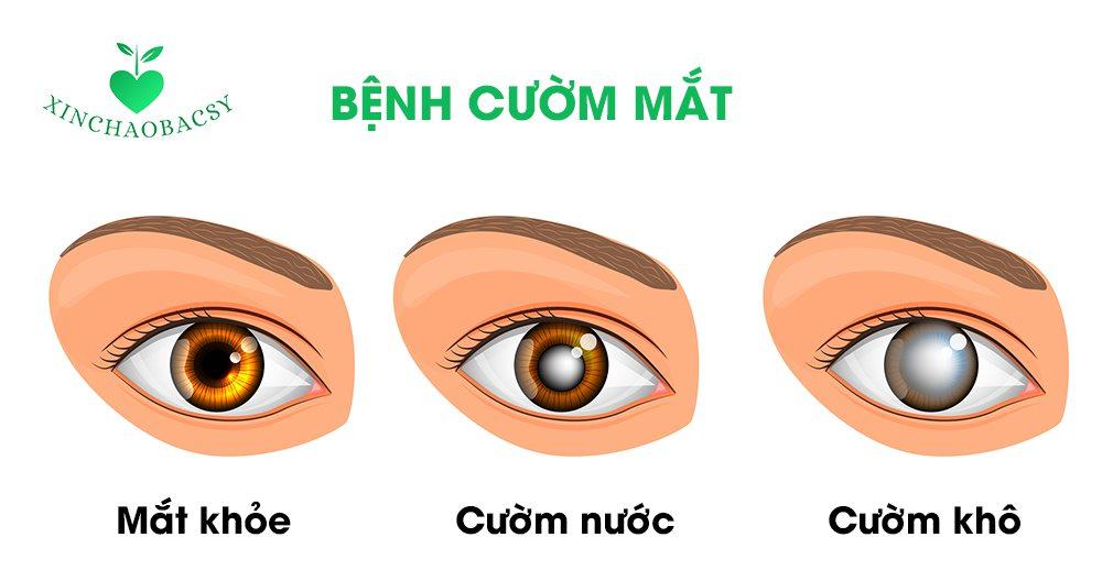 Bệnh cườm mắt (cườm khô, cườm nước) và tất cả thông tin cần biết